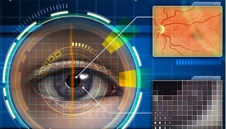 Công nghệ quét mống mắt là gì? nhận diện mống mắt trên điện thoại, mở khóa điện thoại bằng mống mắt.